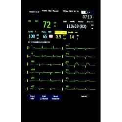 Monitor defibrilla 12L piattelli Laerdal MRX